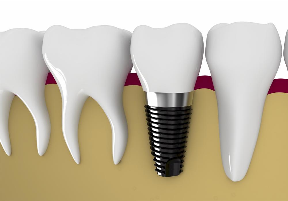 Trồng răng sứ vĩnh viễn giá bao nhiêu do yếu tố nào quyết định? 1