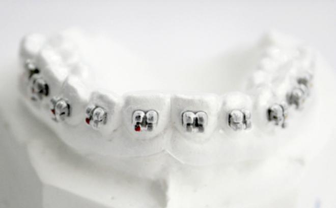 Tại sao nên lựa chọn phương pháp niềng răng gián tiếp