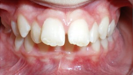 orthodontist-in-richmond-12