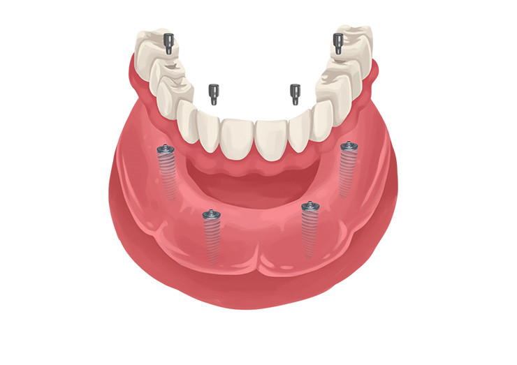 Basic Information You Need to Know About Dental Implants