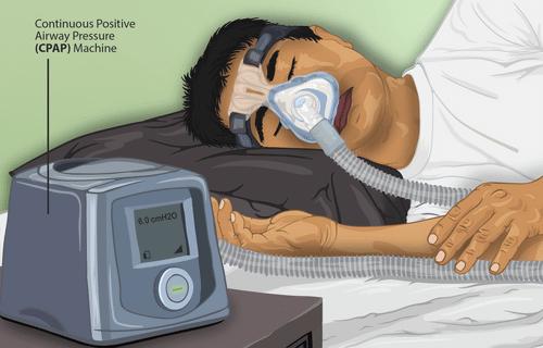 打呼治療,連續正壓型呼吸器搭配鼻罩