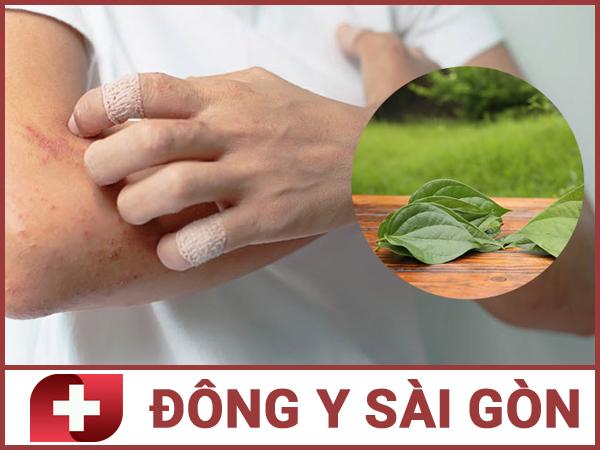 Chữa bệnh viêm da bằng lá trầu không.