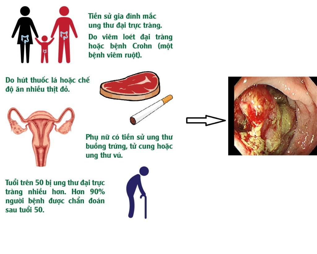 Một số yếu tố tăng nguy cơ bị ung thư đại trực tràng