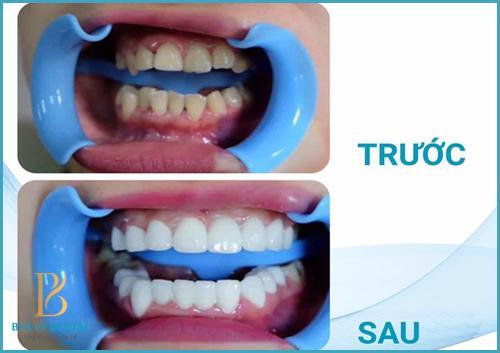 Răng sứ cercon có tốt không nếu được thực hiện tại Nha khoa Bally 1