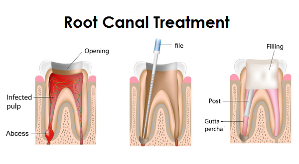 http://dentistpalakkad.com/endodontics/