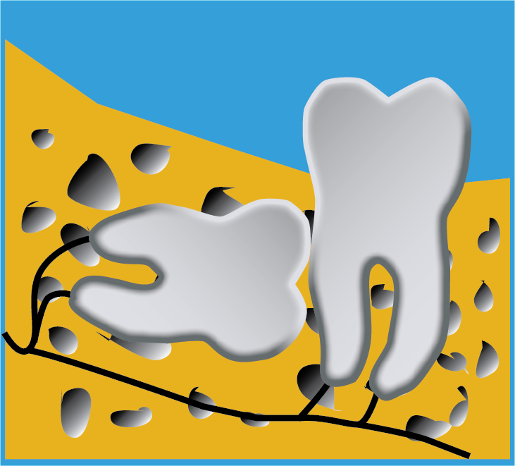 Image of Wisdom Tooth Deep and Tilted Horizontally In Jawbone