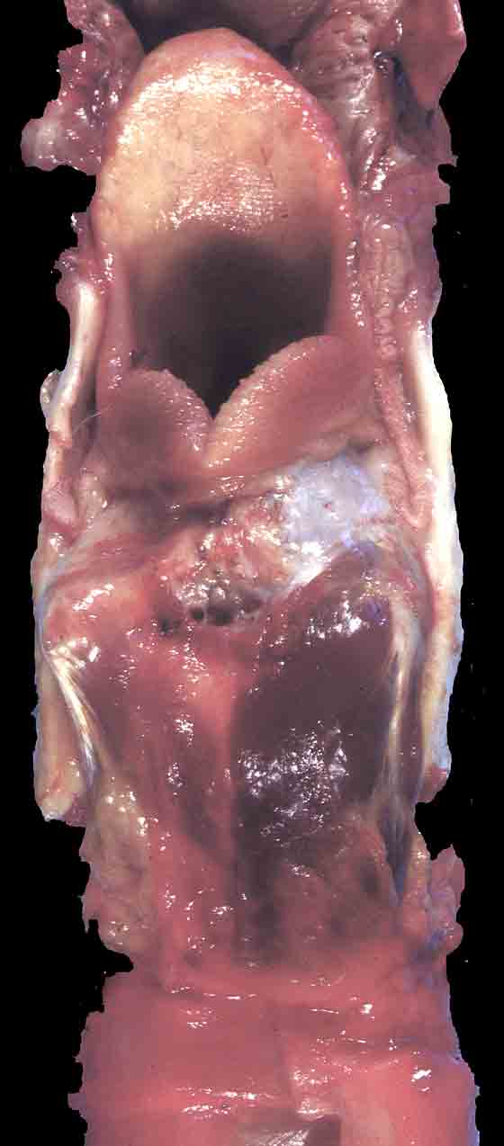 External laryngeal appearance illustrating severe unilateral (top) cricoarytenoid muscle atrophy.