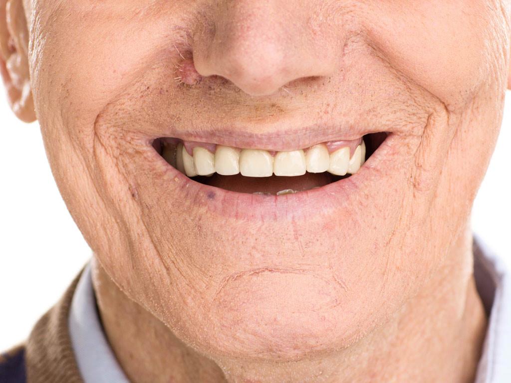 Một số bệnh lý răng miệng thường gặp ở người già