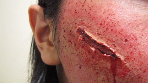 http://th01.deviantart.net/fs70/PRE/f/2012/213/f/0/__sculpt_gel_wound___makeup_2_by_kisamake-d59ds1k.jpg
