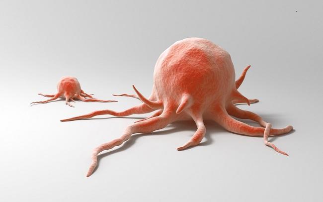 Image result for kanker