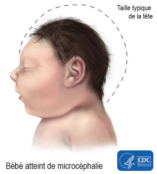 microcephaly-525px_fr.jpg