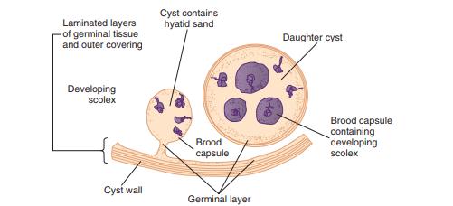 Echinococcus granulosus hydatid cyst