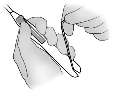 Securing threads on the handle of the insertion de