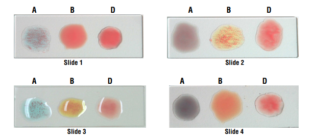 Blood Grouping Result and Interpretation