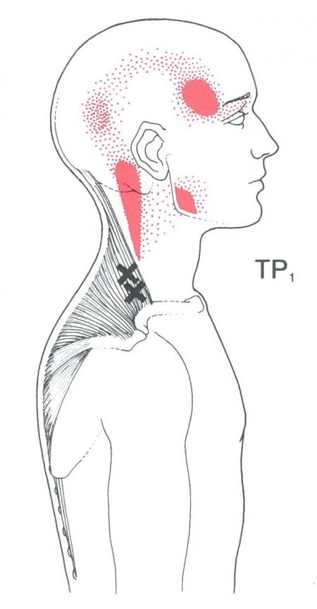 trapezius trigger point