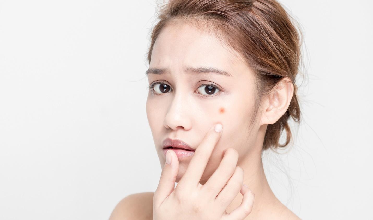 Sau khi nặn mụn có nên chườm đá không? Mẹo chăm sóc da sau nặn mụn không bị thâm 11