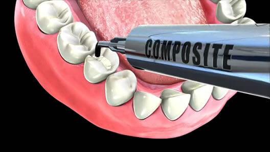 Trám răng bị mẻ mất bao nhiêu thời gian là hợp lý? 1