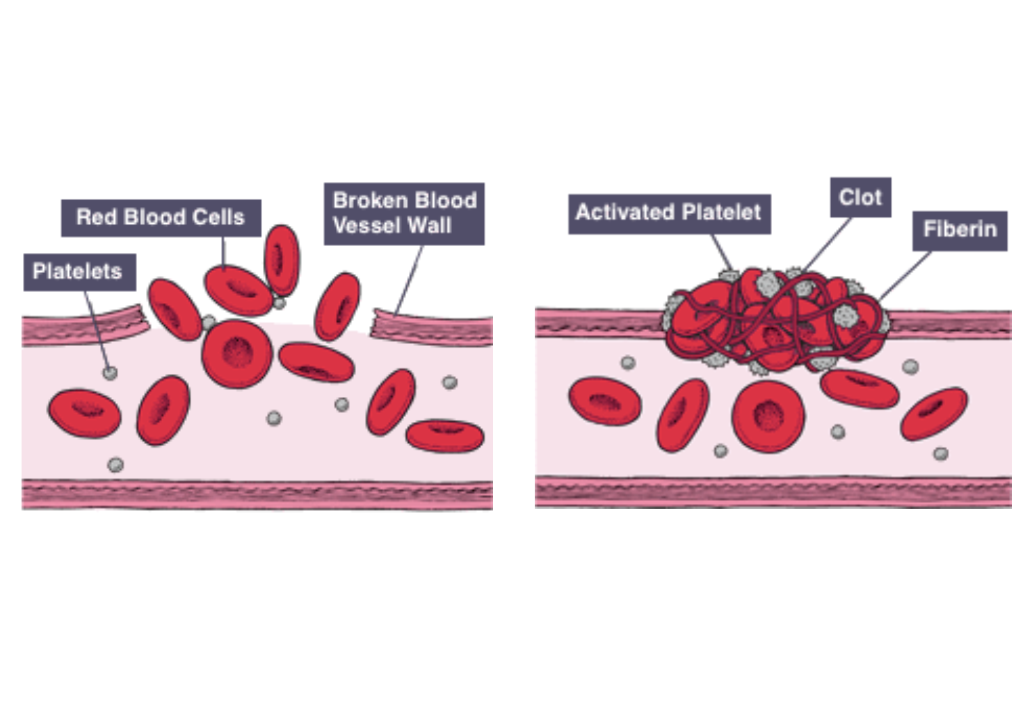 IGCSE Biology Notes: 2.62: Understand that Platelets are ...