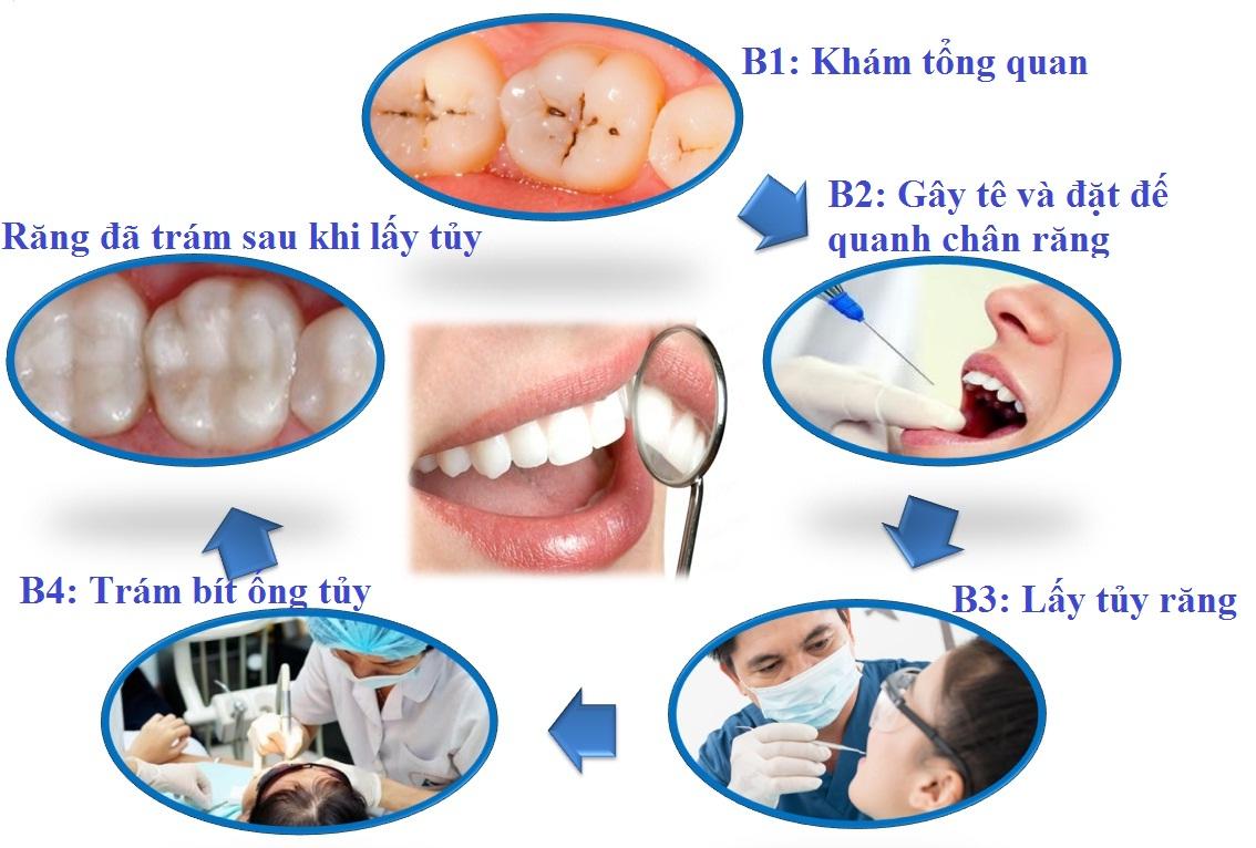 Đừng chủ quan với bệnh viêm tủy răng sữa ở trẻ em 1
