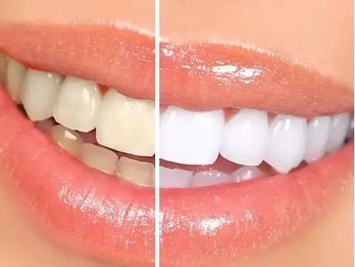 悅刻電子煙會讓牙齒變黃嗎?