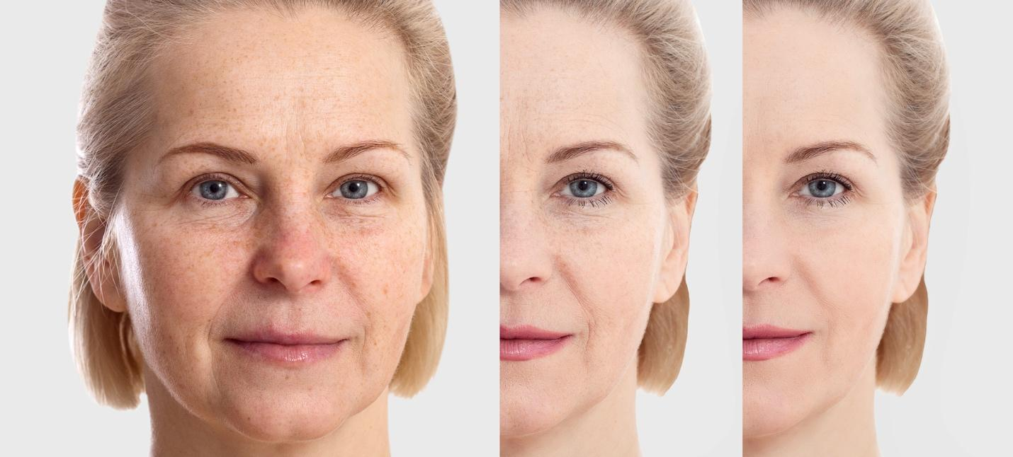 A facelift can produce dramatic results