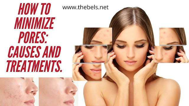 How to minimize pores: causes and treatments.