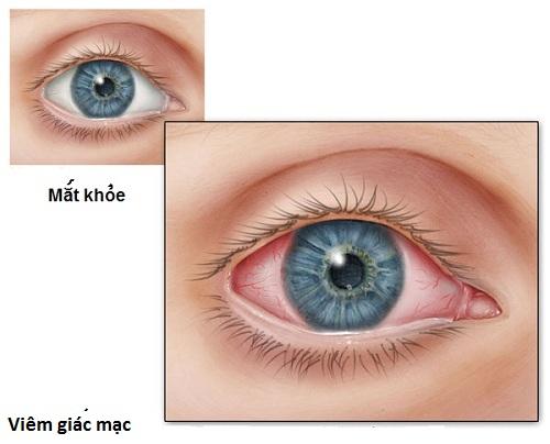 Mắt bị viêm giác mạc