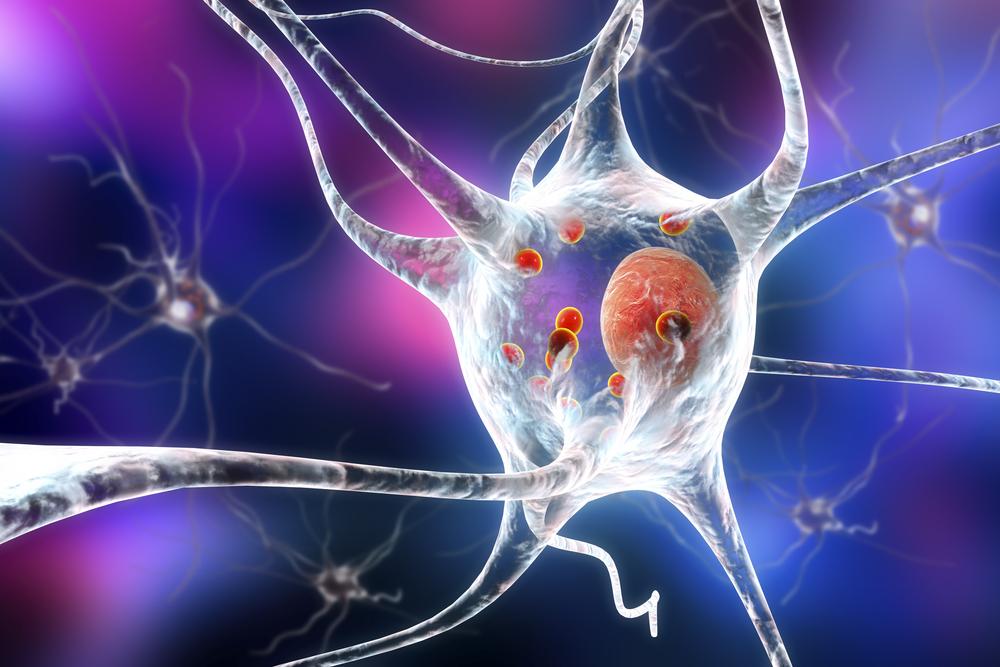 Ilustração mostra proteínas acumuladas em células cerebrais, causando a sua degeneração. (Fonte: Shutterstock)
