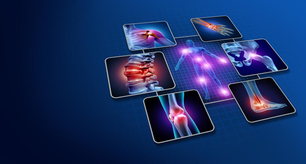 Alguns dos principais pontos de dor da síndrome são as articulações das vértebras, ombros, punhos, bacia, joelhos e calcanhares. (Foto: Shutterstock/Lightspring)