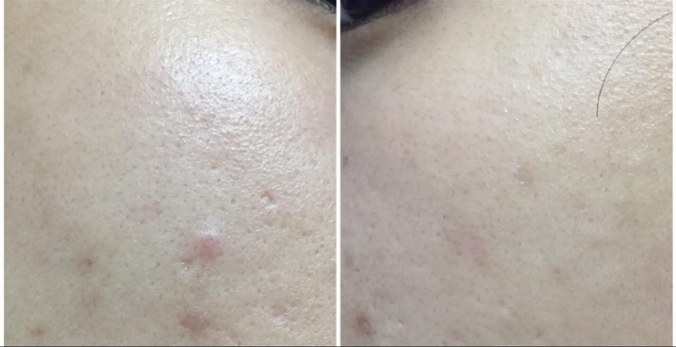 Review Berof Skincare Acne Treatment Lahore