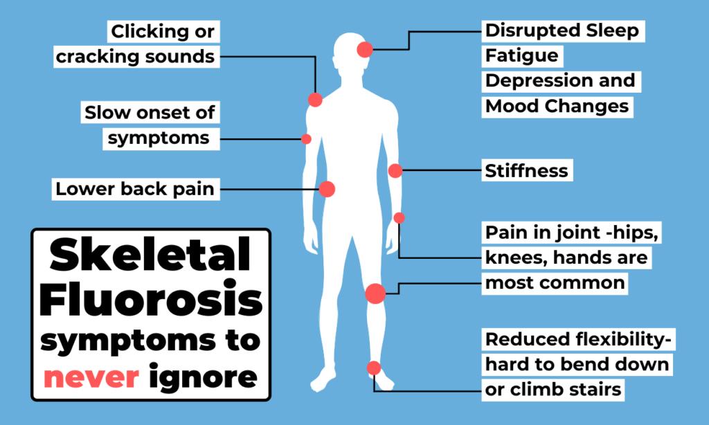 Skeletal fluorosis symptoms