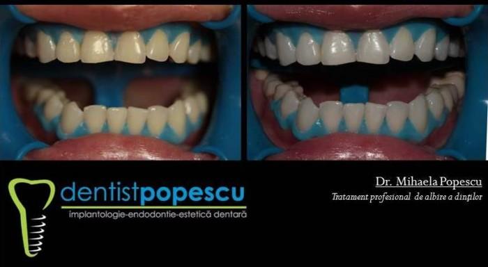 Primul cabinet stomatologic din Craiova care a introdus microscopul dentar ca standard in terapia endodontica. Programari la telefon: 0351 447 914.