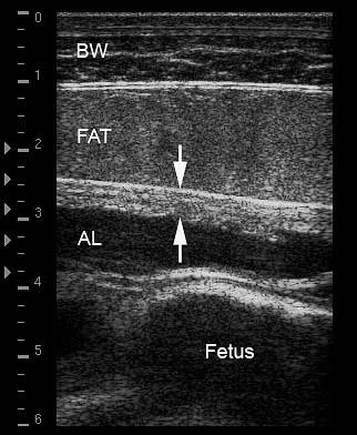 Normal appearance of uteroplacental unit located deep to body wall and retroperitoneal fat layer