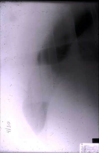 Same horse as in Figure 8 after drainage of pleural fluid.