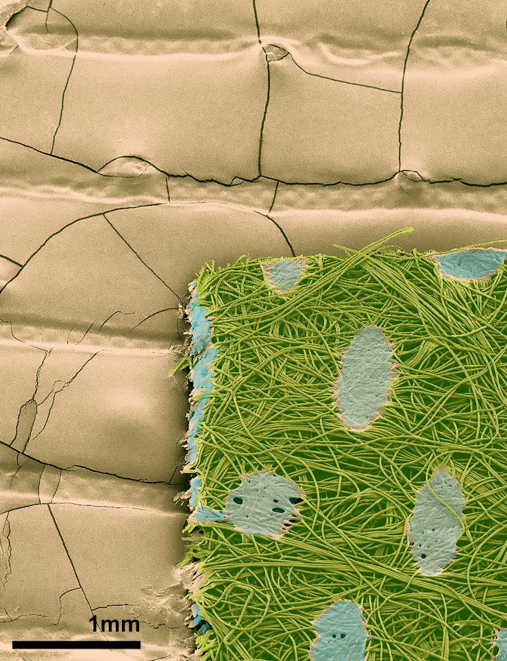 Pseudocolored scanning electron micrograph
