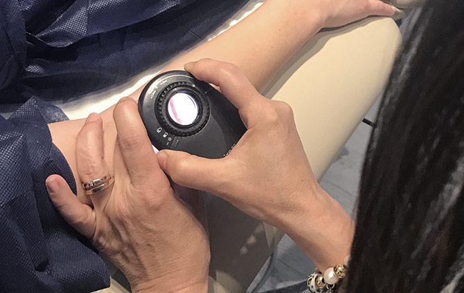 detección melanoma